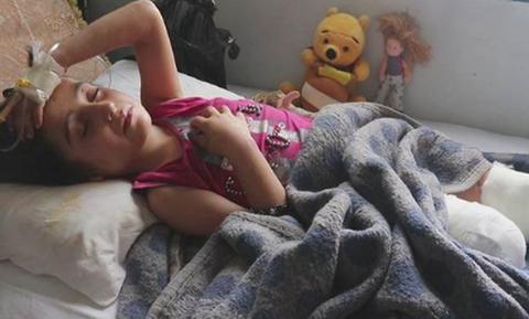 Συρία: Η συγκλονιστική ιστορία της 8χρονης που ακρωτηριάστηκε και έγινε το πρόσωπο του πολέμου
