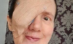 Φρίκη: Της αφαίρεσαν το μάτι επειδή έκανε μια απλή καθημερινή κίνηση στο μπάνιο της (Pics)