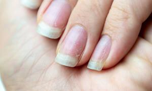 13 προβλήματα υγείας που φαίνονται στα νύχια (video)
