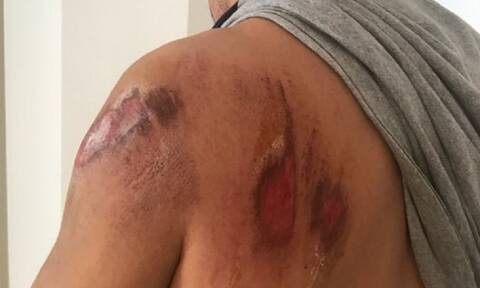 Αγρίνιο: Ποδηλάτης αστυνομικός τραυματίστηκε σοβαρά από επίθεση σκύλου