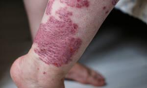 Έκζεμα: 5 εναλλακτικές θεραπείες αντιμετώπισης (εικόνες)
