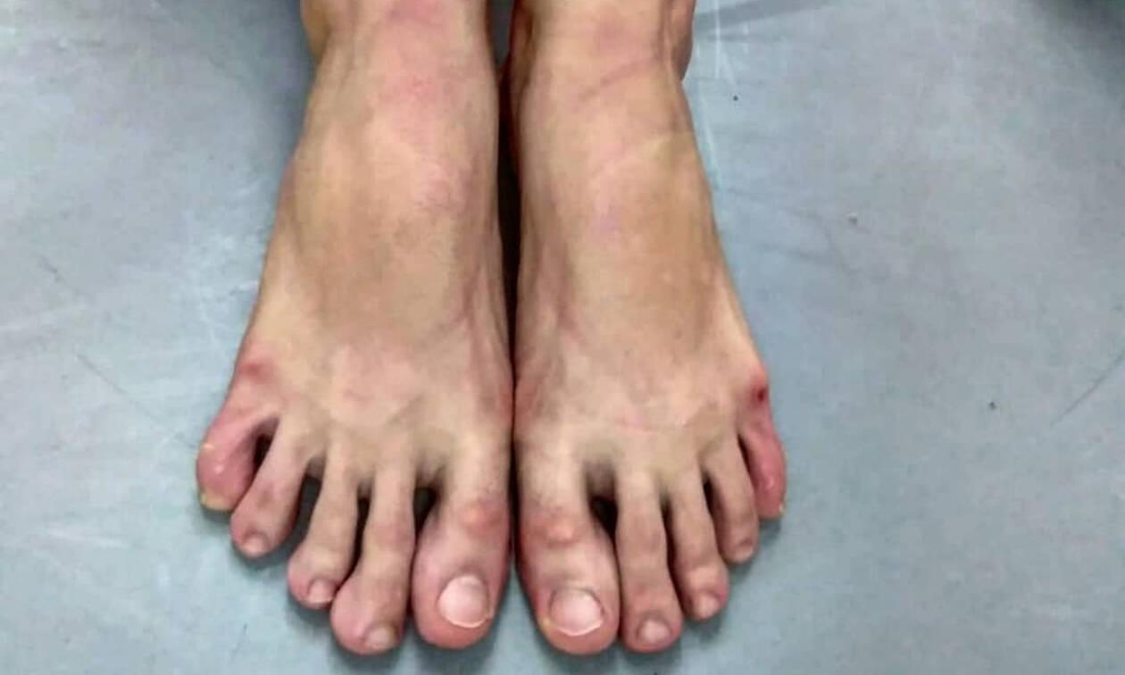 Γνωστή Ελληνίδα ηθοποιός γεμάτη πληγές στα πόδια της -Τι της συνέβη;  (pics)