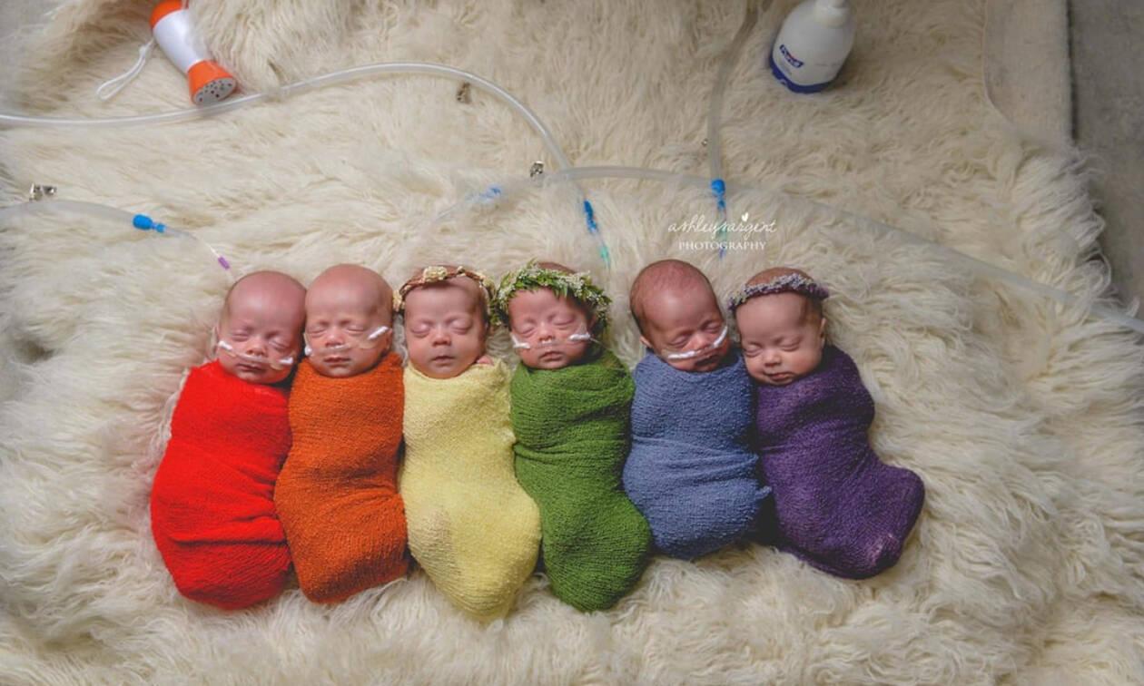 Γέννησε εξάδυμα και αυτές είναι οι φωτογραφίες από τη συγκινητική τους φωτογράφηση (pics)
