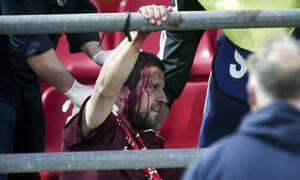 Η Μπάγερν έκανε καταγγελία για τα αίσχη του Ρέντη - Τι λέει η UEFA