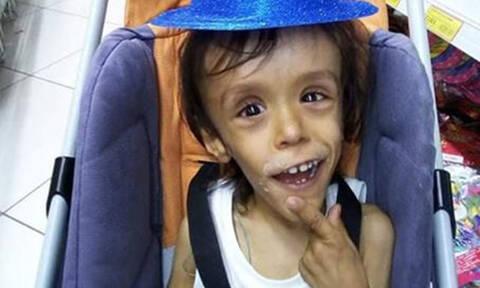 Ο «Μικρός Πρίγκιπας» ζητά στήριξη για τον μικρό Γιώργο για να υποβληθεί σε επέμβαση στην Αυστρία