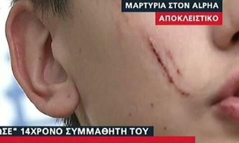 Νέο σοκ σε σχολείο: 14χρονος χαράκωσε συμμαθητή του με κλειδιά (vid)