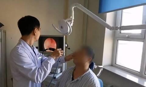 Πήγε στο νοσοκομείο με πόνους στη μύτη - «Πάγωσαν» οι γιατροί όταν είδαν τι είχε μέσα (pics+vid)