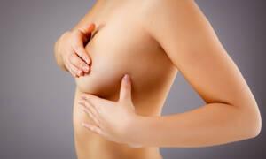 Πώς γίνεται σωστά η αυτοεξέταση για καρκίνο του μαστού (vid)