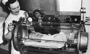 Έτσι ήταν οι πρώτες θερμοκοιτίδες - Σπάνιο φωτογραφικό υλικό (pics)