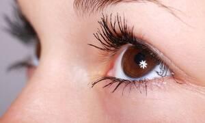 Μεγάλη προσοχή: Αν δείτε αυτό στα βλέφαρα σας τρέξτε στο γιατρό - Δείτε γιατί