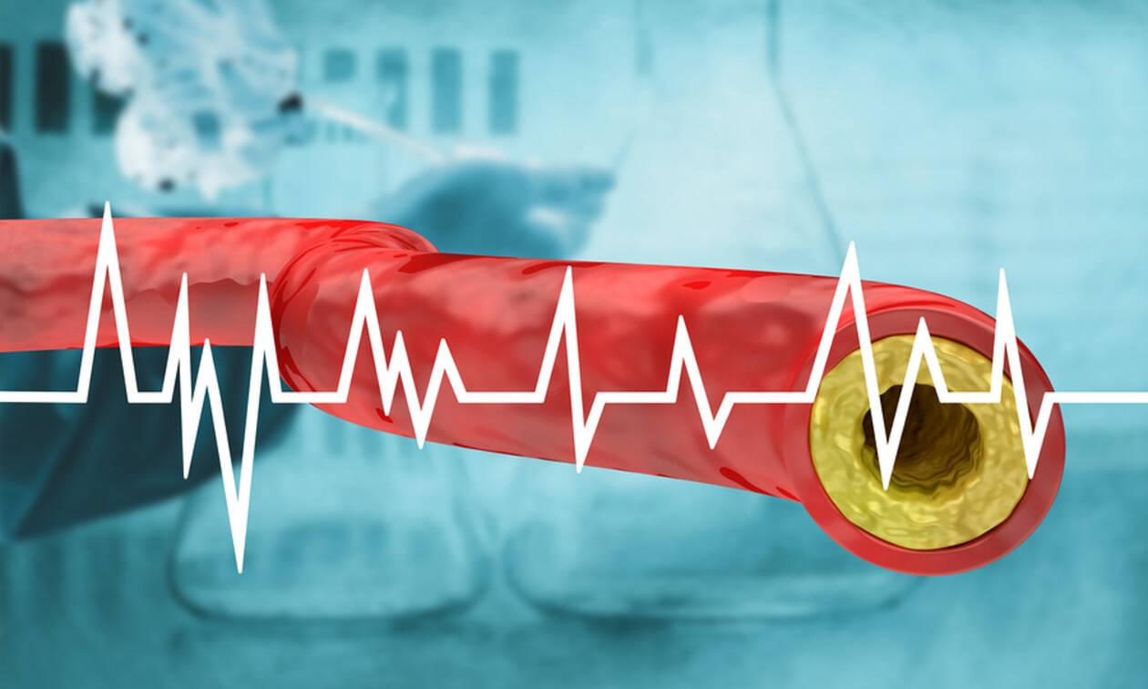 Υψηλή χοληστερόλη: 7 σημάδια που δεν πρέπει να αγνοείτε (video)