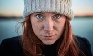 Φαγούρα και ξηρά μάτια από το κρύο: Τα «κόλπα» για να το αντιμετωπίσεις