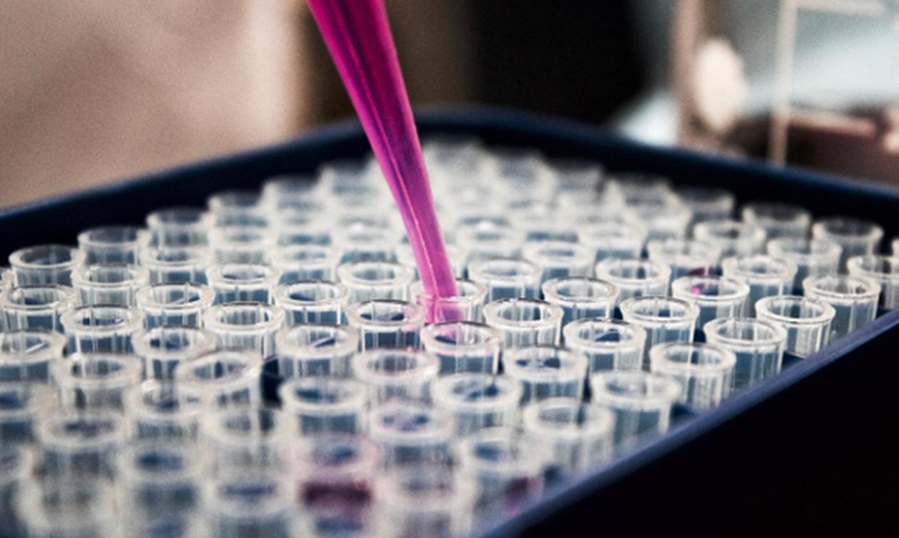 Ανοσοθεραπεία, χημειοθεραπεία ή συνδυασμός στον καρκίνο της κύστεως;
