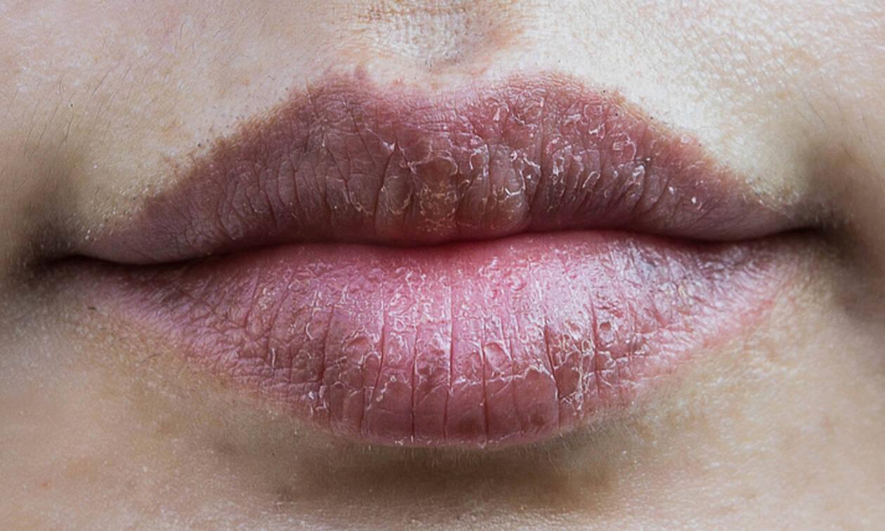Σκασμένα χείλη τον χειμώνα: 9 συμβουλές για να τα θεραπεύσετε