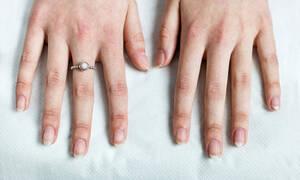 Ποιες πληροφορίες δίνουν τα νύχια για την υγεία σας (video)