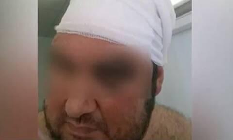 Συγκλονίζει ο επιχειρηματίας που δέχτηκε επίθεση στη Βάρκιζα (vid)