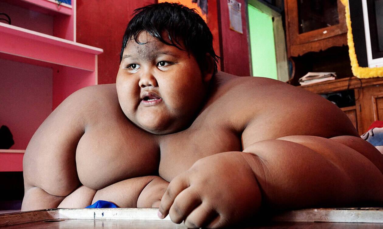Ήταν το πιο χοντρό παιδί στον κόσμο - Σήμερα έκανε δίαιτα