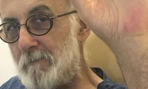 Θάνος Μικρούτσικος: Συγκίνηση για τον τραγουδοποιό - Η έκκληση μέσα από το νοσοκομείο (photos)