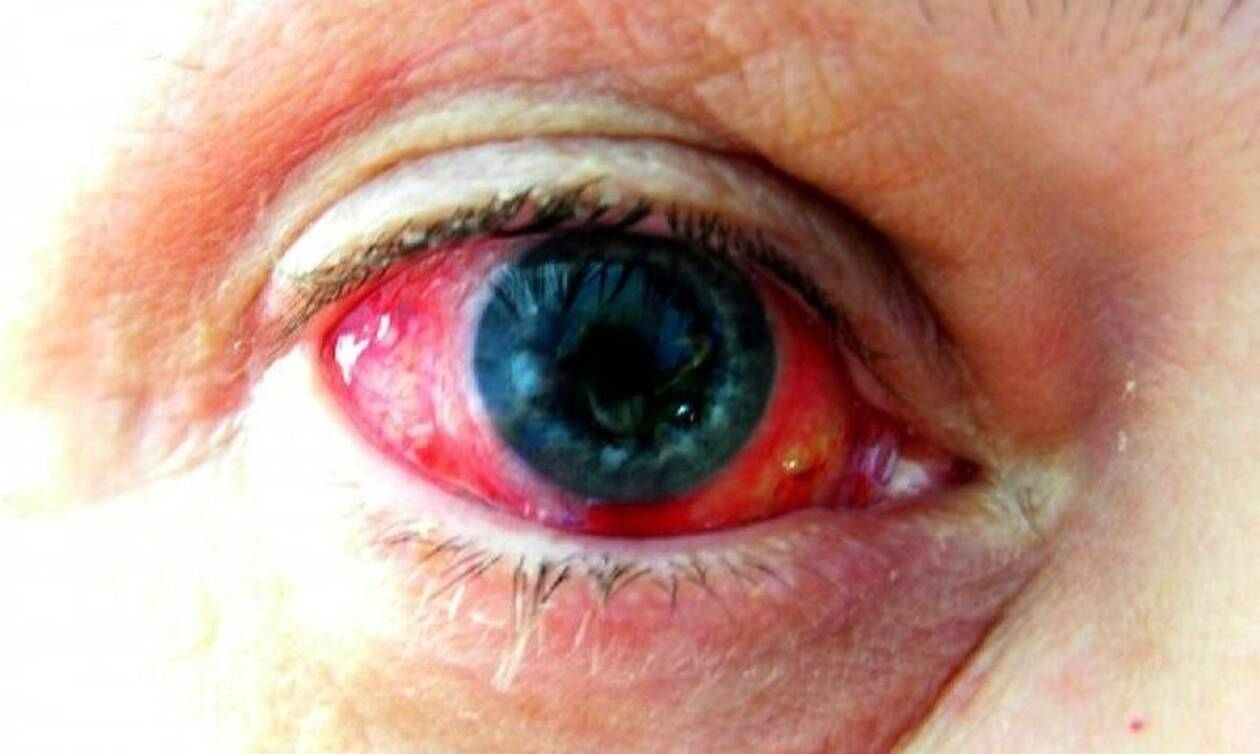 Απίστευτο! Αγοράκι έχει την ασθένεια του Δράκουλα - Ρέει συνεχώς αίμα από τα μάτια του