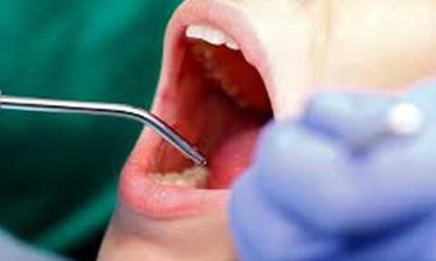 Τρομακτικό: Δες ποσα δόντια αφαίρεσαν γιατροί από επτάχρονο