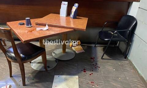 Θεσσαλονίκη: Αιματηρό επεισόδιο σε πρακτορείο του ΟΠΑΠ – Αλλοδαποί έβγαλαν μαχαίρια (pics)