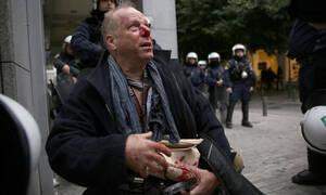 Επεισόδια στο κέντρο της Αθήνας: Ξυλοκόπησαν δημοσιογράφο στο Σύνταγμα (pics&vid)