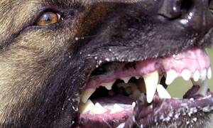 ΣΟΚ: Άγρια επίθεση από σκύλο σε 7χρονο αγοράκι μπροστά στα μάτια του πατέρα του (pics)