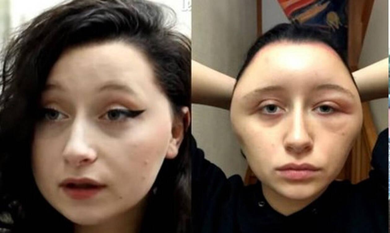ΣΟΚ: Γυναίκα 19 ετών έβαψε τα μαλλιά της και το κεφάλι της έγινε... λάμπα (pics)