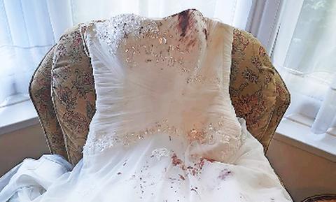 Γάμος - εφιάλτης: Το νυφικό γέμισε με αίματα (pics)