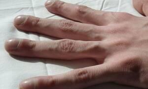 ΣΟΚ: Έτρωγε συνεχώς τα νύχια του - Δείτε τι έπαθαν τα δάχτυλά του (ΣΚΛΗΡΕΣ ΕΙΚΟΝΕΣ)