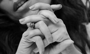 Αυτή είναι η γυναίκα με τα περισσότερα δάχτυλα στον κόσμο (ΣΚΛΗΡΕΣ ΕΙΚΟΝΕΣ)