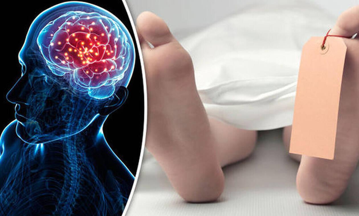 Γίνεται να ζήσει ο εγκέφαλος μετά τον θάνατο;
