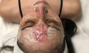 DIY: μάσκα προσώπου με φρέσκα φρούτα για τέλειο δέρμα
