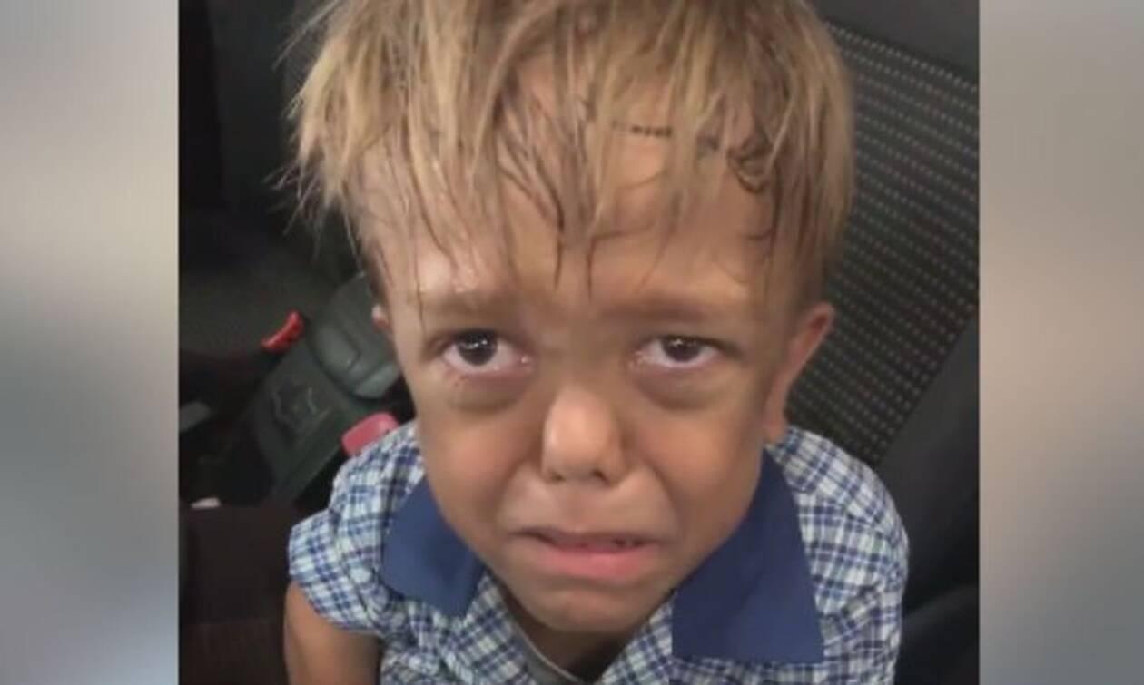 Αγόρι - νάνος κλαίει με λυγμούς λόγω σχολικού bullying: «Θέλω να αυτοκτονήσω» (vid)