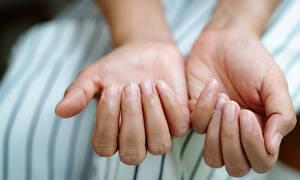 Σημάδια στα νύχια και τι δείχνουν για την υγεία (βίντεο)
