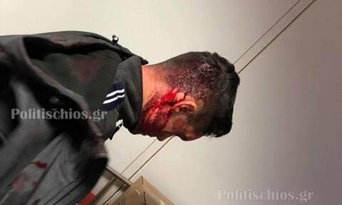 Χίος: Απρόκλητη επίθεση των ΜΑΤ σε κατοίκους (Σκληρές εικόνες)