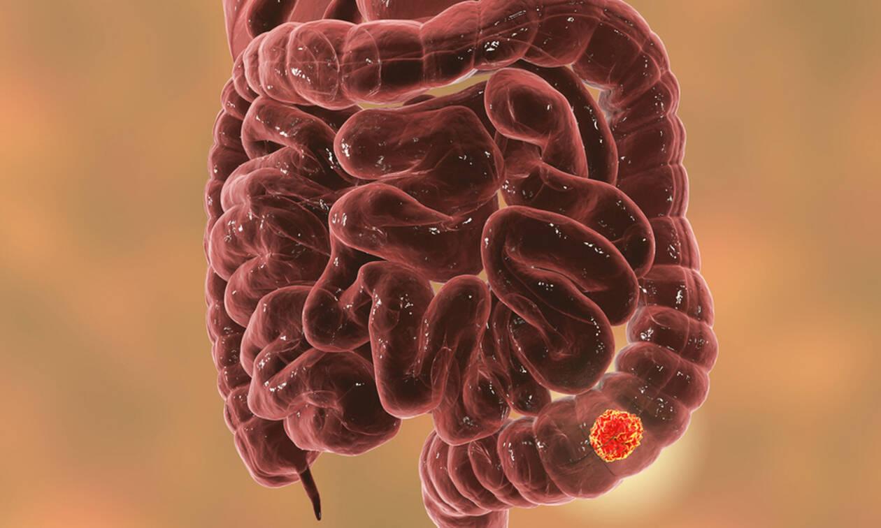 Καρκίνος παχέος εντέρου: Οι 6 προειδοποιητικές ενδείξεις (εικόνες)