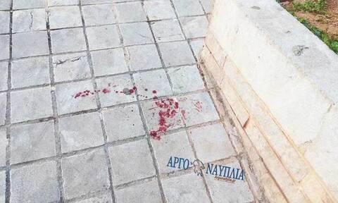 Άγριος καυγάς στο Ναύπλιο: Προσπάθησε να του κόψει το κεφάλι με αλυσοπρίονο