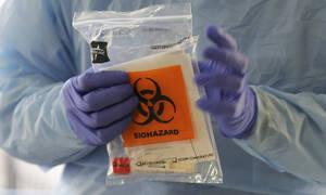 Κορονοϊός: Μόνο σε αυτούς θα γίνεται πλέον το τεστ στα ελληνικά δημόσια νοσοκομεία