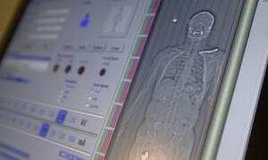 Κορονοϊός: Δείτε τι κάνει στο ανθρώπινο σώμα - Ποια όργανα επηρεάζει