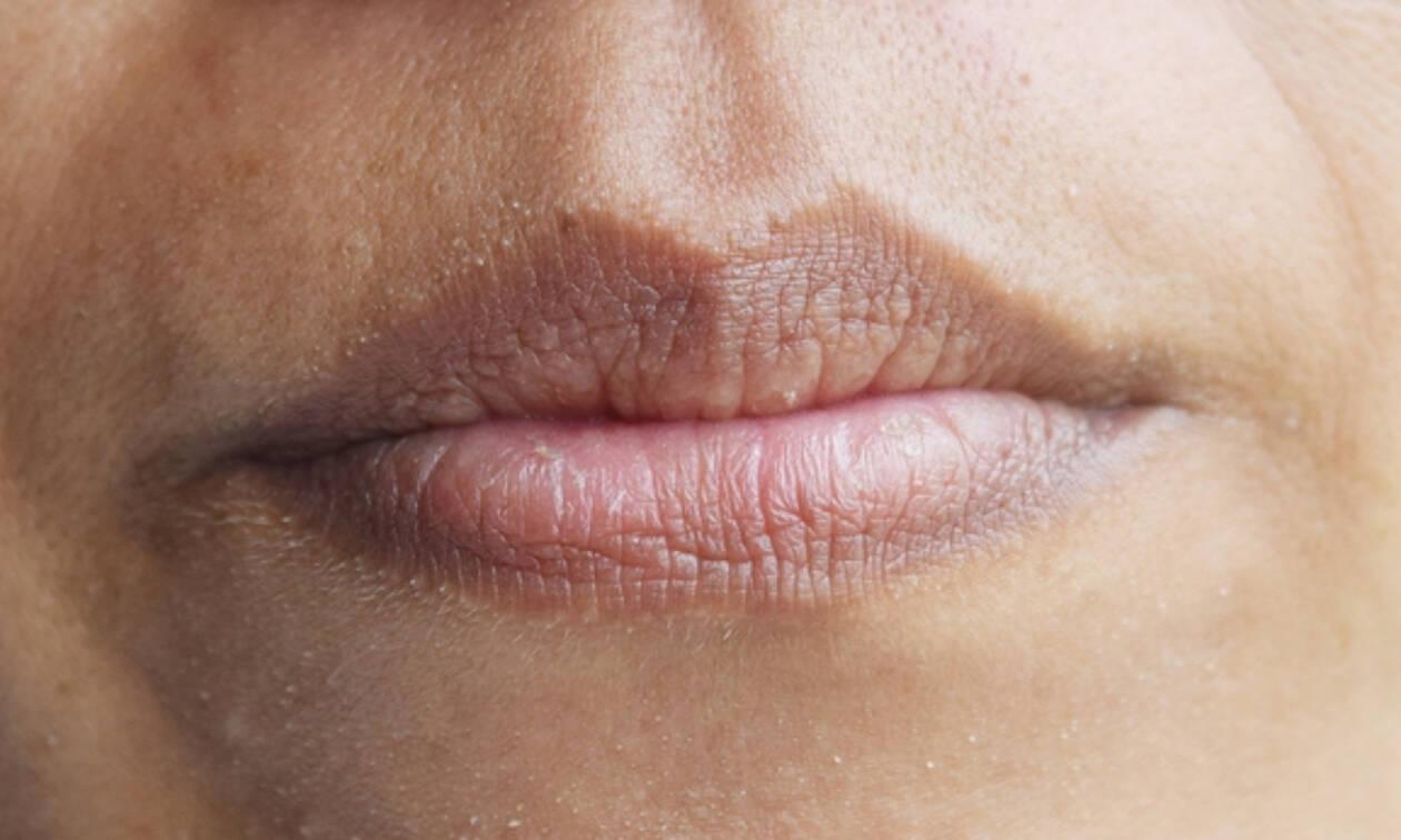 Στόμα που στεγνώνει: Αιτίες & αντιμετώπιση (εικόνες)
