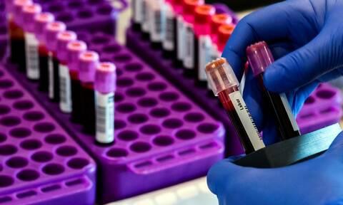 Κορονοϊός: Πιθανή θεραπεία από πλάσμα αίματος με αντισώματα ερευνά συμμαχία επιστημονικών ομάδων