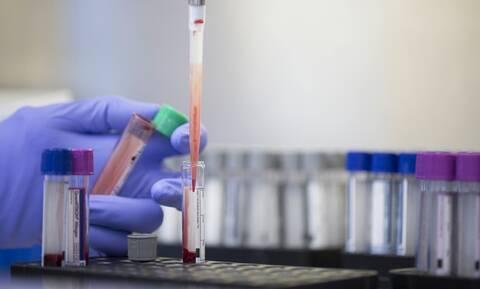 Κορονοϊός: Συχνές οι αιματολογικές επιπλοκές της λοίμωξης COVID-19