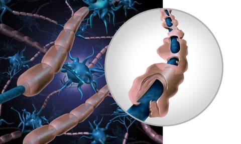 Πολλαπλή σκλήρυνση: Πόσο αυξάνει τον κίνδυνο εγκεφαλικού & εμφράγματος