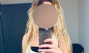 Καλλιθέα:Ποιος και γιατί έκαψε με βιτριόλι την 34χρονη–Το κινητό, το Facebook και οι πρώην σύντροφοι