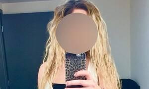 Επίθεση με βιτριόλι: Νέα τροπή στην υπόθεση - Τι υποστηρίζει η 34χρονη Ιωάννα
