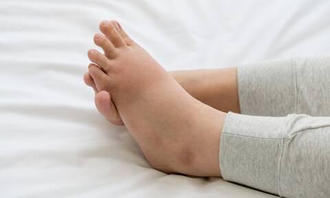 Πρησμένα πόδια λόγω κατακράτησης υγρών: Πώς θα το αντιμετωπίσετε (εικόνες)