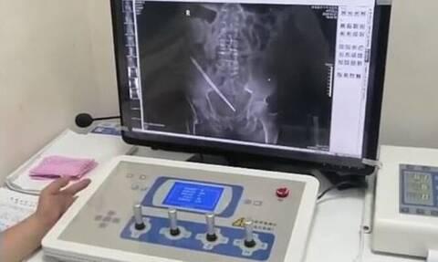 Είχε πόνους στην κοιλιά – «Πάγωσαν» οι γιατροί με αυτό που βρήκαν μέσα