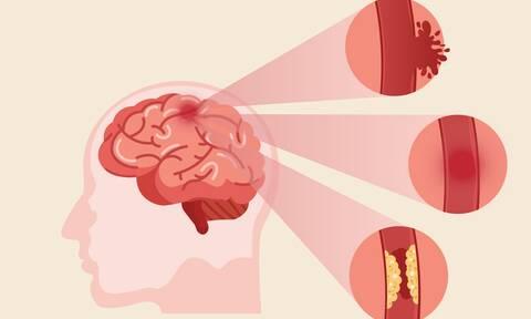 Εγκεφαλικό: 15 παράγοντες που αυξάνουν τον κίνδυνο (βίντεο)