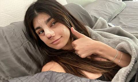 Άλλος άνθρωπος η Mia Khalifa! Η «νέα» της μύτη κόστισε… 15.000 δολάρια! (Photos)
